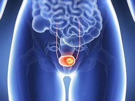 Podstępny nowotwór. Co roku zabija 3 tys. osób (WIDEO)