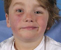 Kobra ugryzła 4-latka. Straszne, co stało się z jego twarzą