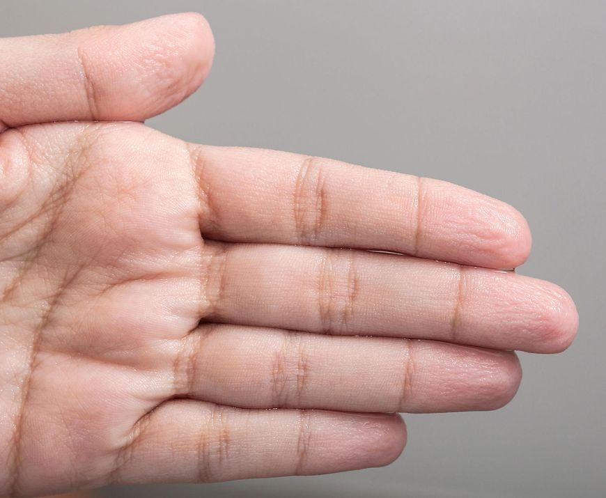 Marszczenie się skóry, jak mechanizm obronny organizmu