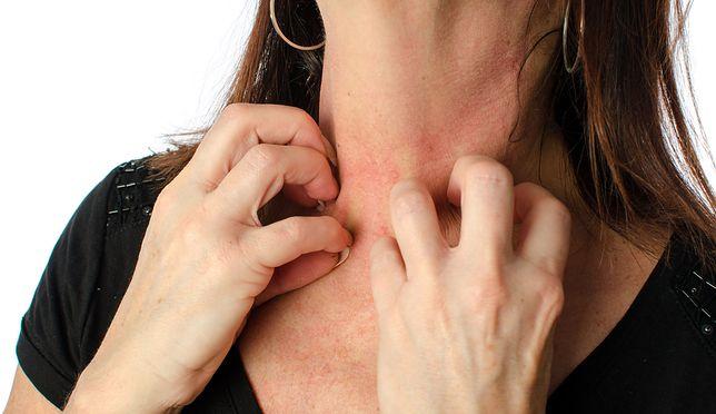Alergia na kosmetyki - balsam peruwiański i inne alergeny