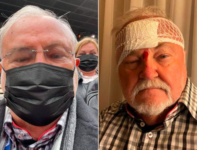 Andrzej Kosmala miał wypadek. Z koncertu dla Krawczyka trafił do szpitala