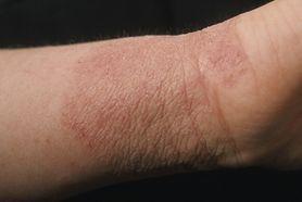 Alergia kontaktowa – przyczyny, objawy, leczenie i profilaktyka