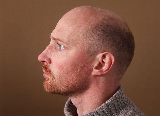 Wypadaniu włosów można zapobiegać na wiele sposobów, z których najpopularniejsze są szampony przeciwko łysieniu