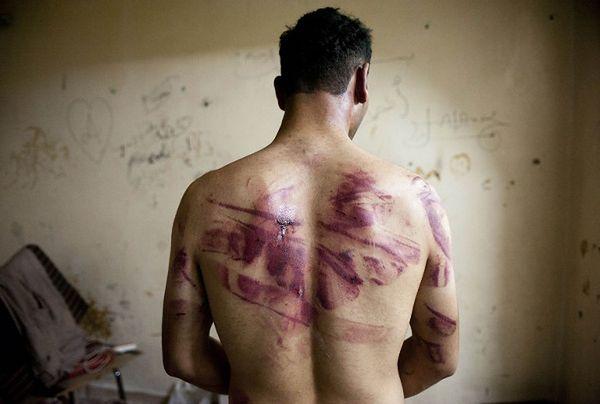 Historia okrucieństwa - dlaczego na świecie nadal stosowane są tortury?