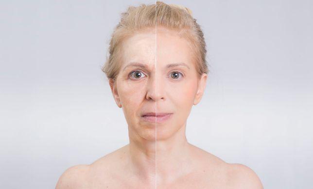 """Chirurgia plastyczna: przykra prawda o zdjęciach """"przed"""" i """"po"""""""