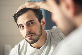 Naturalne metody leczenia łysienia androgenowego u kobiet i mężczyzn. Czy są skuteczne?
