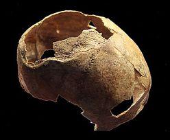 Niesamowite odkrycie sprzed 5 tys. lat. Na czaszce są ślady operacji