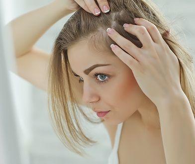 Wypadające włosy - olejki, maski i inne domowe sposoby na łysienie