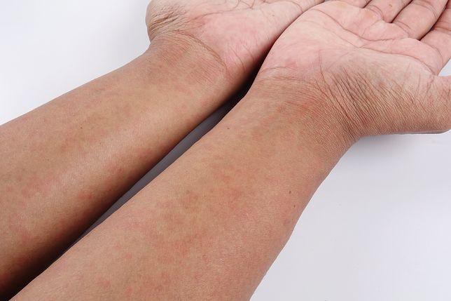 Naukowcy wytworzyli skórę tam, gdzie jej nie ma
