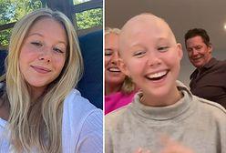 Miranda McKeon ma 19 lat i choruje na raka piersi. Aktorka opisała, jak się czuje bez włosów