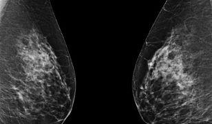 Obustronna mastektomia nie zwiększa szans przeżycia