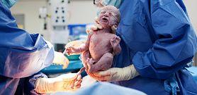 Co trzeci noworodek w Polsce rodzi się przez cesarskie cięcie