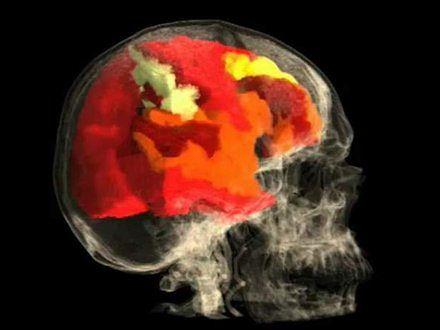 Tak wygląda kobiecy mózg w czasie orgazmu
