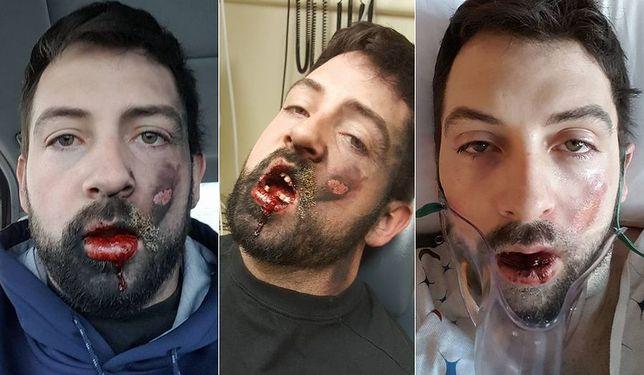 Palenie rzeczywiście szkodzi zdrowiu