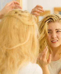 Straciły włosy przez pandemię. Przybywa osób, które wyłysiały z powodu stresu związanego z COVID-19
