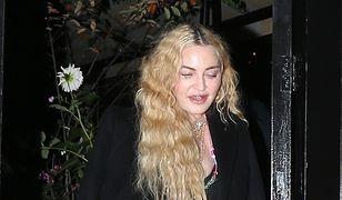 Madonna przesadziła z wypełniaczami. Tak źle jeszcze nie wyglądała