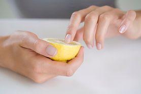 Żółte paznokcie. Dlaczego się pojawiają i jak się ich pozbyć?
