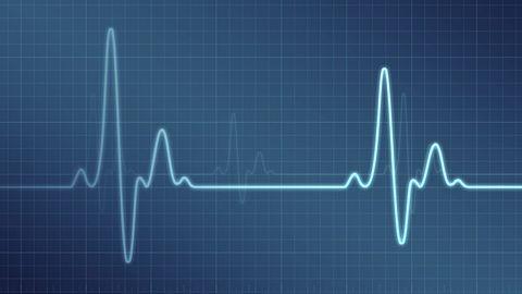 Opaska Nymi - autoryzacja za pomocą EKG