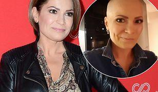 Joanna Górska trzy lata temu przechodziła chemioterapię - straciła włosy