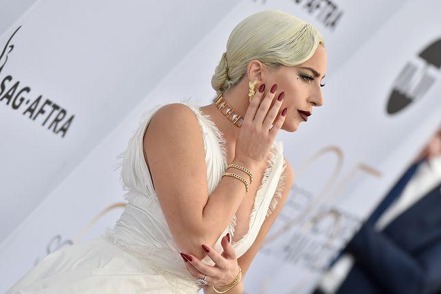 """Lady Gaga pozuje na ściankach. Na każdym zdjęciu """"boli ją ząb"""""""
