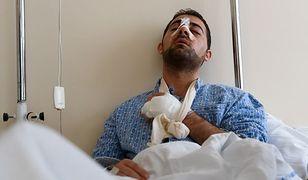 Pobity Syryjczyk, George Mamlook został zaatakowany w Poznaniu przez trzech mężczyzn.