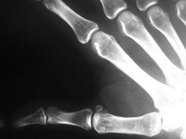 Implanty z bioszkła - są nawet tysiąc razy twardsze od ludzkich chrzęści