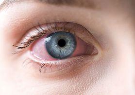 Alergia drażni oczy? Sprawdź, jak sobie pomóc