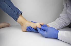Leki na grzybicę paznokci - grzybica paznokci, lakiery, doustne leki na grzybicę paznokci