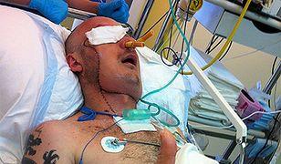 Przeszczep twarzy - pierwszy w Polsce