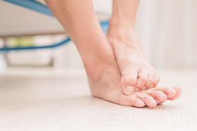 Grzybica skóry - przyczyny, objawy, zapobieganie, diagnostyka, leczenie
