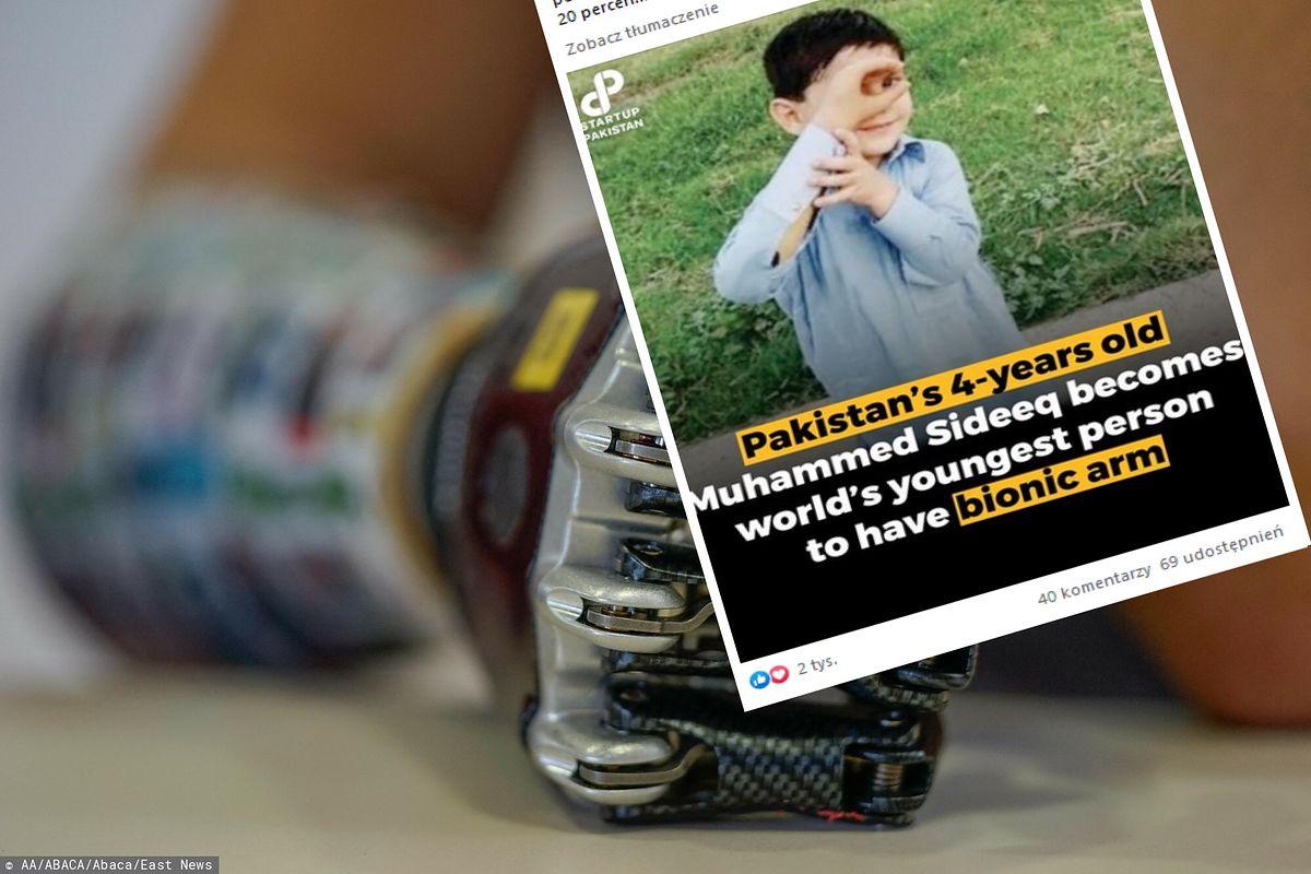 Najmłodszy człowiek z bionicznym ramieniem na świecie
