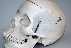 Dwie czaszki ponad 70 lat leżały w szafie niemieckiego lekarza. Eksperci ustalą do kogo należały?
