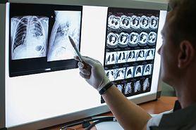 Koronawirus w Polsce. Szczepionka przeciwko gruźlicy chroni przed COVID-19? Prof. Robert Mróz radzi czy warto odświeżyć szczepienie