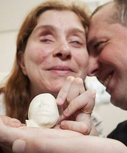 """Miłość od pierwszego dotyku. Niewidomi przyszli rodzice tak """"zobaczyli"""" dziecko dzięki USG"""
