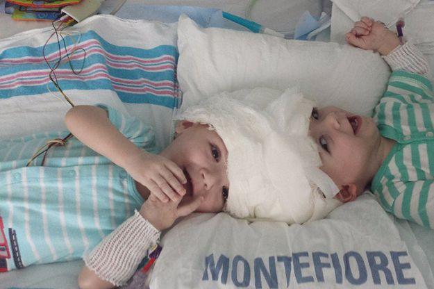 Po 27-godzinnej operacji rozdzielono bliźnięta syjamskie