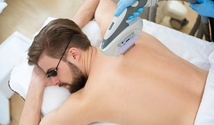 Depilacja laserowa jest najskuteczniejszym sposobem usuwania niechcianego owłosienia z pleców.