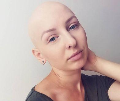 Straciła wszystkie włosy. Ola przełamuje tabu i dodaje sił innym kobietom