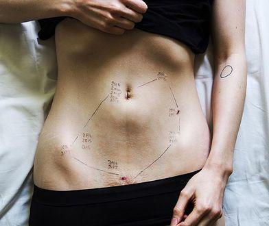 Pokazała zdjęcie brzucha naznaczonego bliznami. Choroba, na którą cierpi, ignorowana jest przez lekarzy