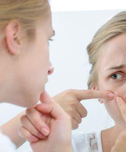 Cera trądzikowa - kosmetyki do pielęgnacji cery z trądzikiem