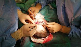 Śląskie. Zespół chirurgów Centrum Onkologii w Gliwicach przeprowadził pomyślnie zabieg replantacji skalpu u 39-letniej kobiety.