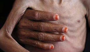 Kobieca dłoń obejmuje wychudzone ciało jemeńskiego dziecka