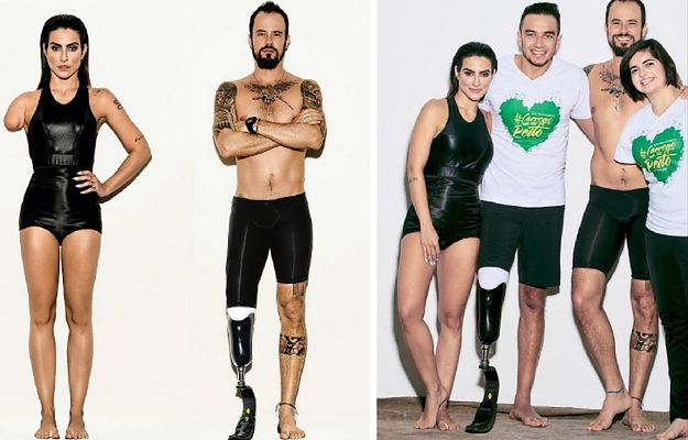 Burza po zdjęciach w brazylijskim Vogue'u. Tak magazyn promuje paraolimpiadę