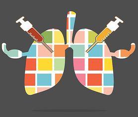 Odma płucna - charakterystyka, objawy, diagnostyka, leczenie