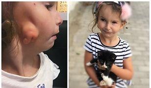 Szczecin. Skradziono pieniądze zbierane na operację dla 5-letniej Mai Tucholskiej.