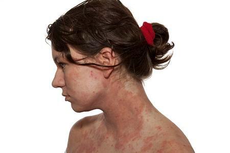 Wykwity alergiczne