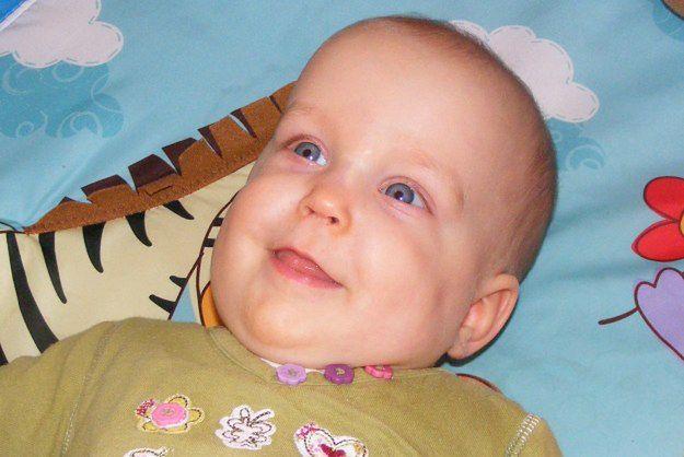 Małej Amelce grozi amputacja ramienia. Rodzice proszą o pomoc