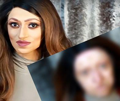 Assya cierpi na poważną chorobę skóry
