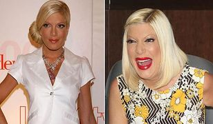Tori Spelling: Jej twarz ewoluuje!