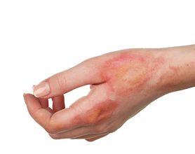 Oparzenia - jak powstają, stopnie oparzeń, zagrożenia, metody łagodzenia objawów