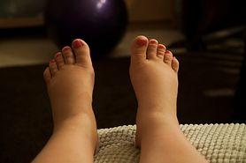 Obrzęki na nogach to ważny sygnał wysyłany przez organizm. Nie bagatelizuj
